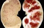Что такое нефрит почек? Нефрит: симптомы, диета и лечение заболевания