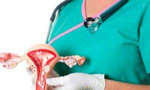Как делают биопсию шейки матки: важные моменты.