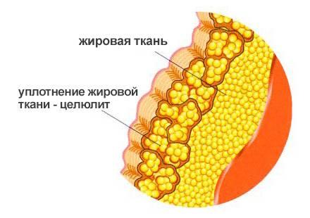 Нарушение баланса жировой ткани