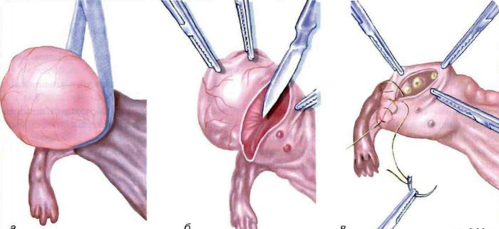 Клиновидная резекция яичниковых тканей