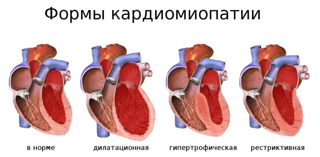 kardiomiopatiya