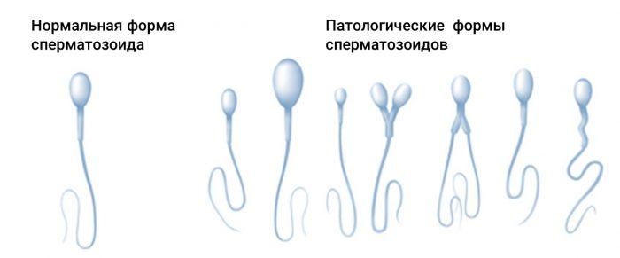 потология головки