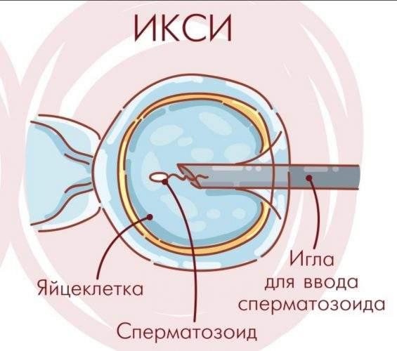 процедура ИКСИ