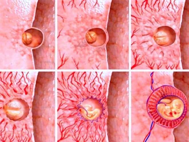 развития зародыша после переноса в матку в ходе процедуры ЭКО