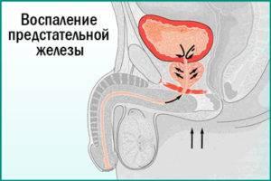 Влияние простатита на беременность свечи от простатита простатилен купить