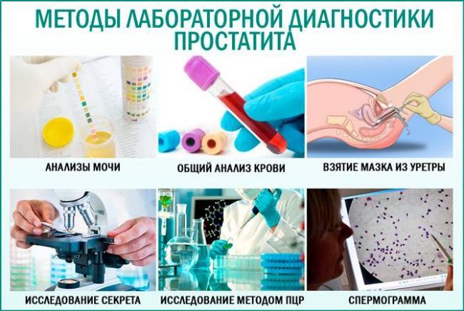 Анализ диагностика простатита тыква простатит