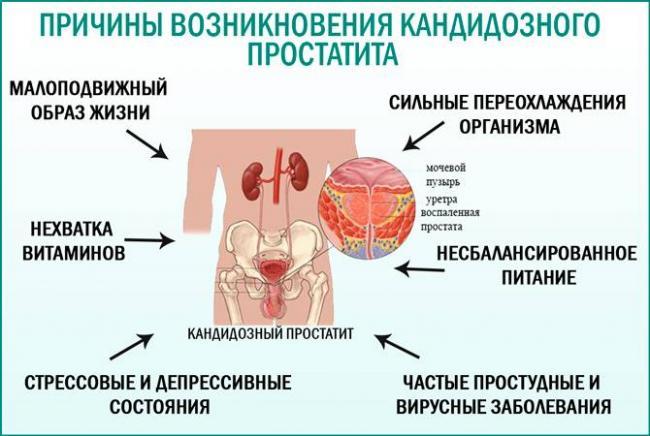 Инфекция может перейти в простатит простатит и марихуана курить можно
