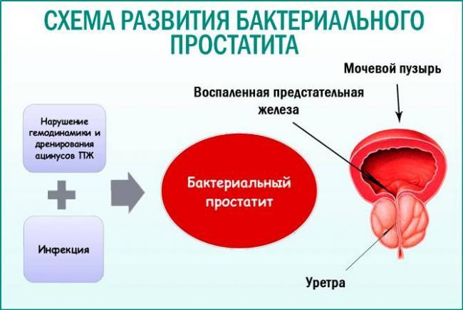 Простатит жжение мошонка острый простатита лечение лекарства