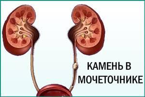 krov-pri-mocheispuskanii-u-zhenshchin-s-bolyu_2.jpg