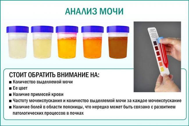 krov-pri-mocheispuskanii-u-zhenshchin-s-bolyu_22.jpg