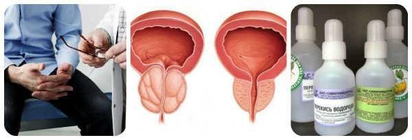 lechenie-prostatita-perekisyu-vodoroda.jpg