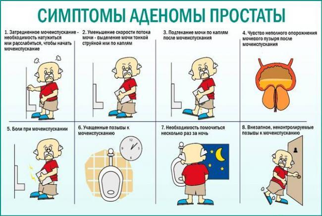 Simptomy-adenomy-prostaty.jpg