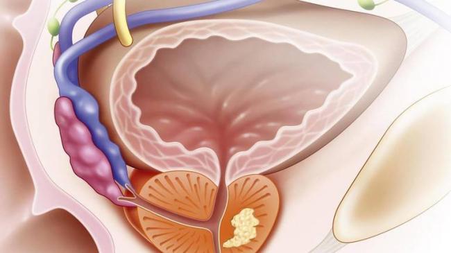 hronicheskiy-prostatit-4.jpg